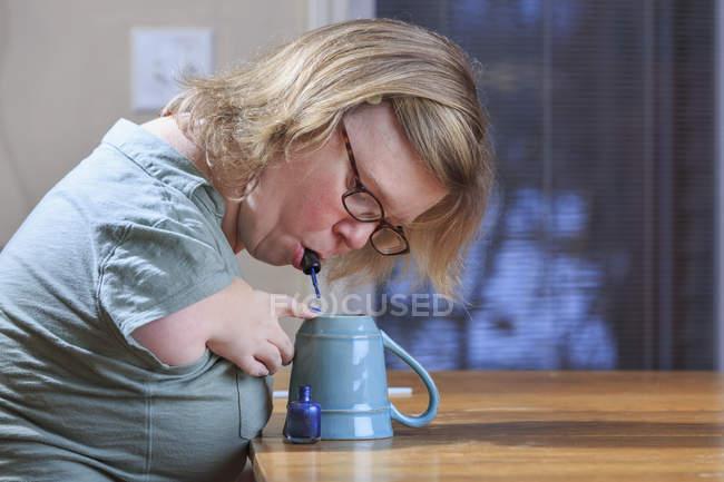 Donna con sindrome di TAR dipingere unghie a casa . — Foto stock