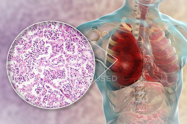 Lobar pneumonia in stage of red hepatisation, digital illustration and light micrograph. — Stock Photo
