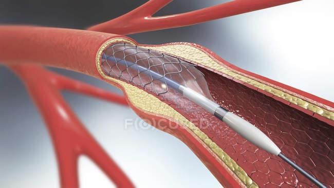 Імплантат артеріальної стента, медична Цифрова ілюстрація. — стокове фото