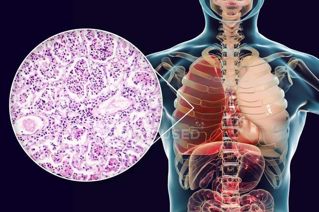 Pneumonia lobar em estágio de hepatite vermelha, ilustração digital e micrografia de luz . — Fotografia de Stock