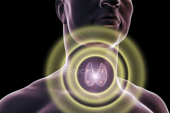 Ilustração digital de glândulas paratireoides vermelhas acentuadas situadas atrás da glândula tireoide em silhueta humana . — Fotografia de Stock