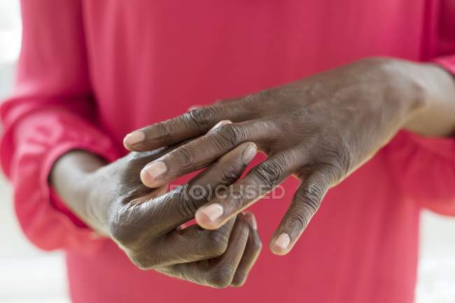 Close-up of hands of mature woman with painful hand joints. — Stock Photo