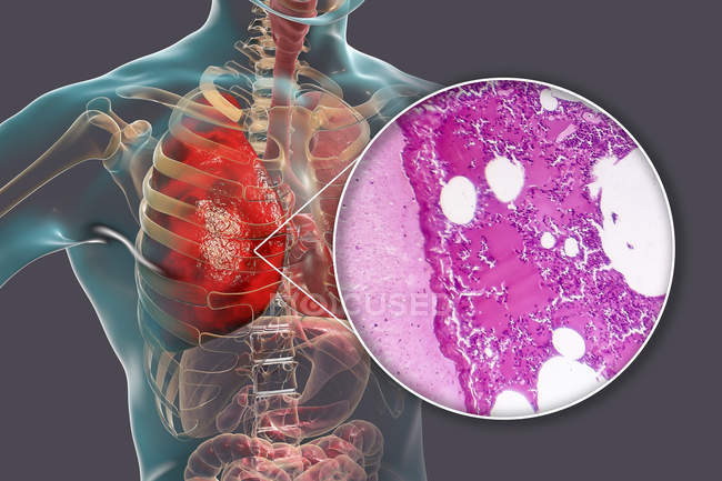 Lobar pneumonia in stage of congestion and consolidation, digital illustration and light micrograph. — Stock Photo
