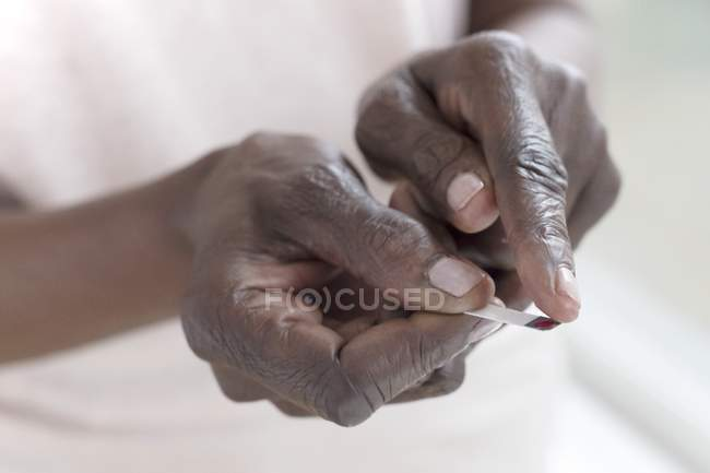 Close-up of hands of mature woman using paper strip to test blood glucose. — Stock Photo