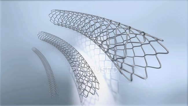 3d illustration of three metal stents for implantation into blood vessels. — Stock Photo