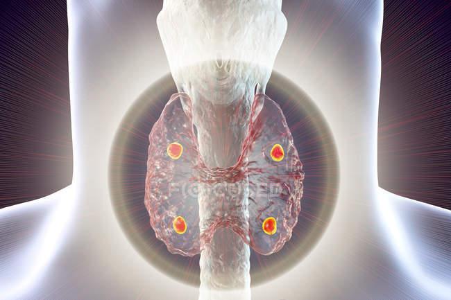 Illustrazione digitale delle ghiandole paratiroidi rosse accentuate situate dietro la ghiandola tiroidea nella silhouette umana . — Foto stock