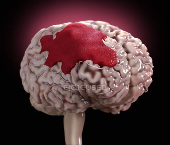 Human brain haemorrhage, digital illustration. — Stock Photo