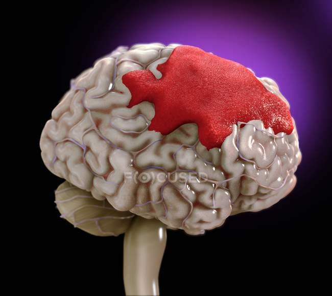 Hemorragia cerebral humana, ilustração digital . — Fotografia de Stock
