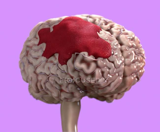Emorragia cerebrale umana, illustrazione digitale. — Foto stock
