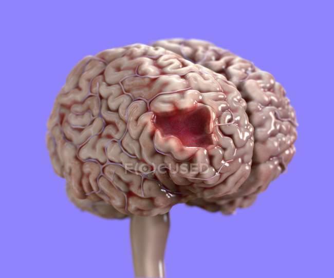 Daño cerebral humano, ilustración médica digital . - foto de stock