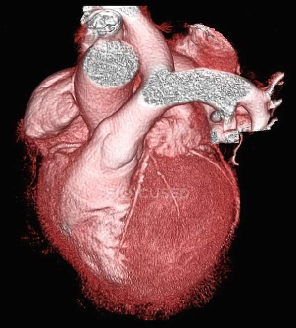 Healthy heart on black background, 3D computed tomography scan. — Stock Photo