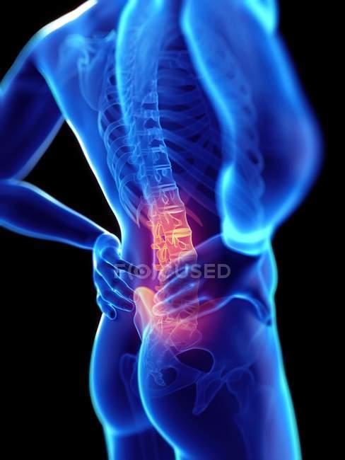 Silhouette humaine avec système squelettique et maux de dos colorés, illustration numérique. — Photo de stock