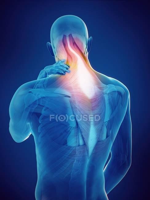 Silhouette humaine avec la douleur lumineuse de cou, illustration numérique. — Photo de stock