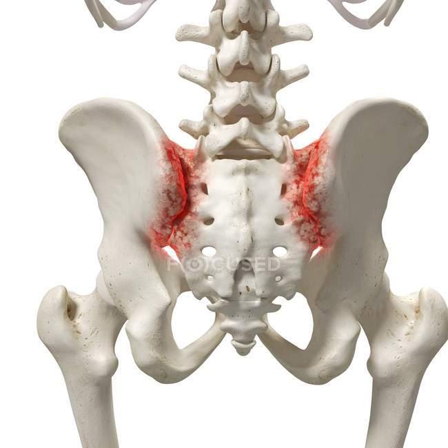 Ilustración digital realista que muestra artritis en sacro humano . - foto de stock