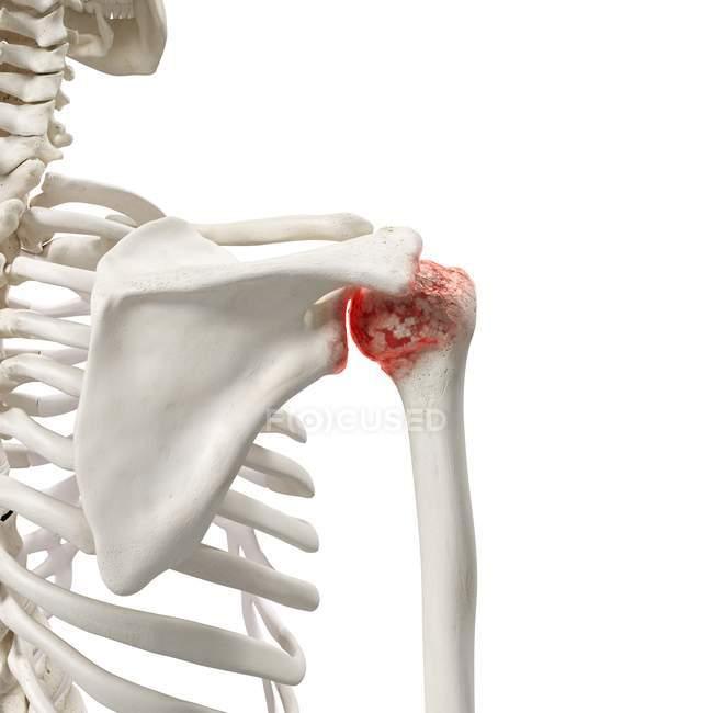 Ilustración digital realista que muestra artritis en el hombro humano . - foto de stock