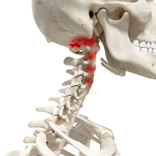 Ilustración digital realista que muestra artritis en la columna cervical humana . - foto de stock