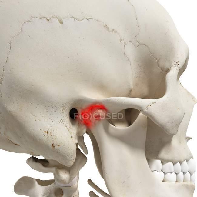 Ilustración digital realista que muestra artritis en la articulación mandibular humana . - foto de stock