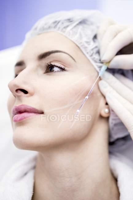 Лікар дерматолог малюнок для різьблення по темі-ліфтинг, Крупний план. — стокове фото