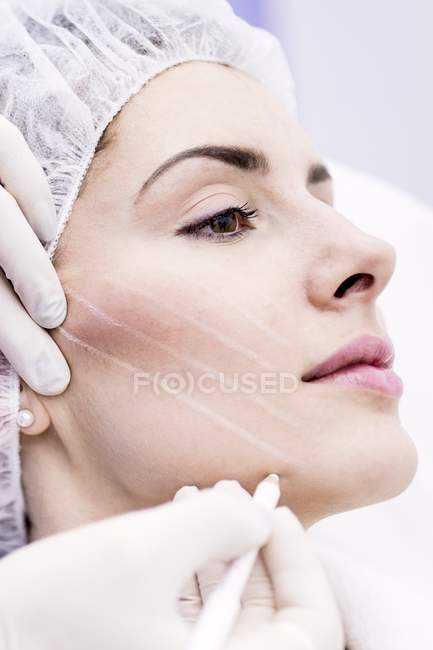 Dermatologist drawing marks on woman face for thread-lift, close-up. — Stock Photo