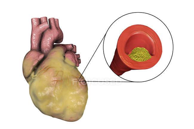 Digital illustration of fatty heart and coronary artery narrowed by fatty plaque. — Stock Photo