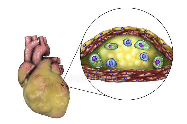 Digital illustration of diseased fatty human heart and cross-section close-up of atherosclerotic plaque histological structure, necrotic centre, foam cells and T-lymphocytes. — Stock Photo