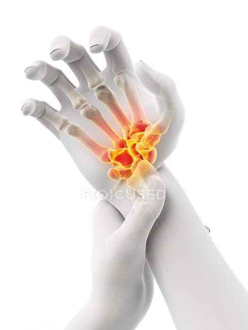 Male hands with glowing wrist pain, conceptual illustration. — Stock Photo