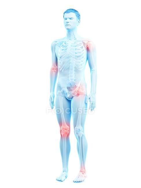 Corps humain avec douleurs articulaires, illustration conceptuelle . — Photo de stock