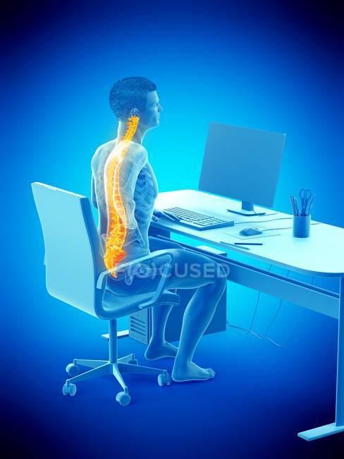 Работник мужского офиса с болью в спине, концептуальная иллюстрация . — стоковое фото