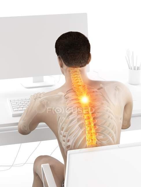 Vista trasera del trabajo en el escritorio silueta masculina con dolor de espalda, ilustración conceptual . - foto de stock