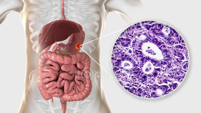 Adénocarcinome de l'estomac humain, illustration par ordinateur et micrographie photonique . — Photo de stock