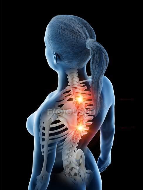 Женский силуэт с светящейся болью в спине, концептуальная цифровая иллюстрация. — стоковое фото