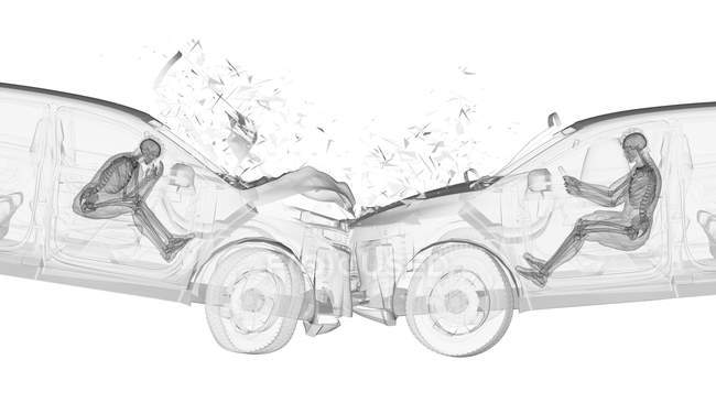 Illustration de rayon X du risque de blessure tandis que head-on accident de voiture, dessin-modèle numérique. — Photo de stock