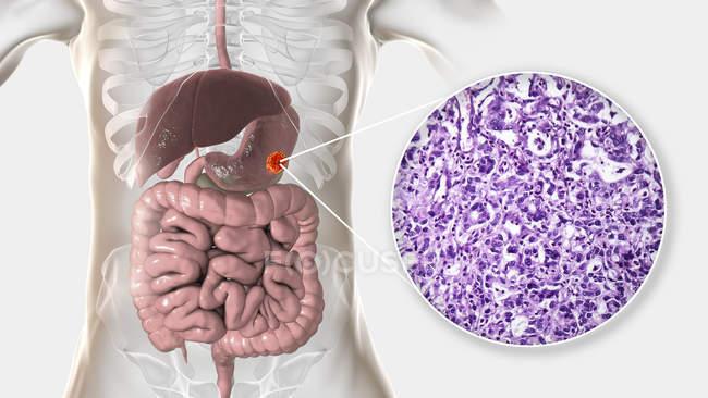Human stomach adenocarcinoma, computer illustration and light micrograph. — Stock Photo