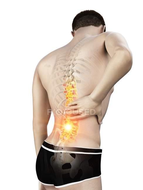 Silueta masculina con dolor de espalda sobre fondo blanco, ilustración conceptual . - foto de stock