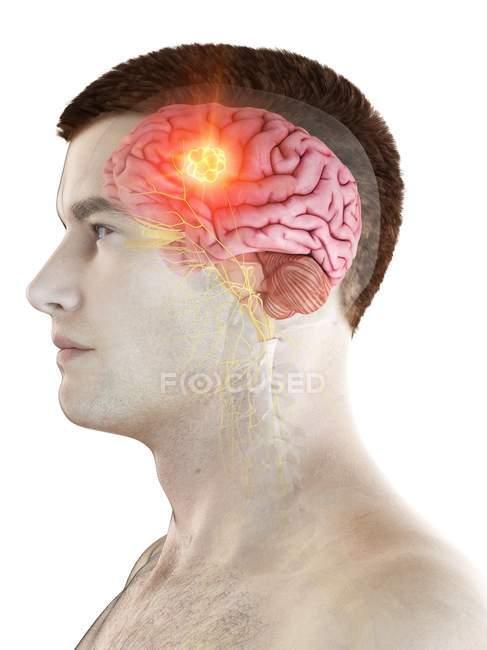 Hirntumor im männlichen Körper, konzeptionelle Computerillustration. — Stockfoto