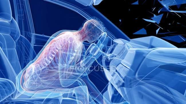 X-ray illustration of risk of spine injury while head-on car crash, digital artwork. — Stock Photo