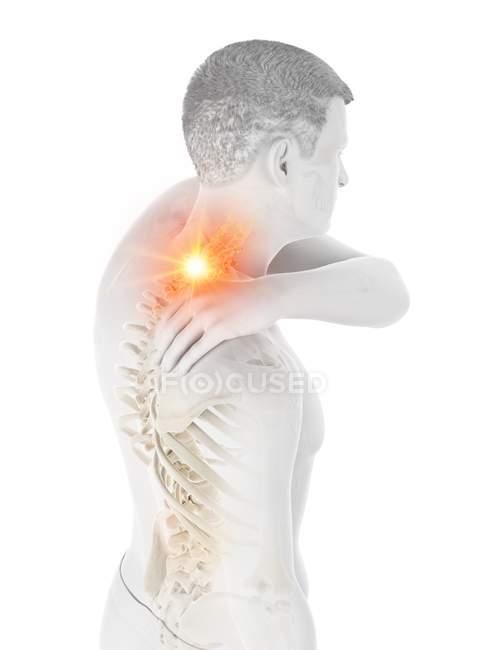 Силуэт человека с болью в шее, концептуальная иллюстрация. — стоковое фото
