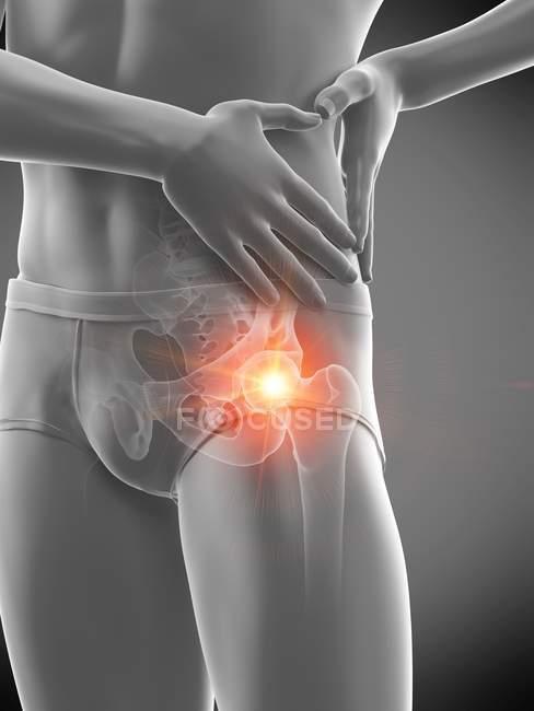 Silueta masculina abstracta con dolor de cadera visible, ilustración digital . - foto de stock