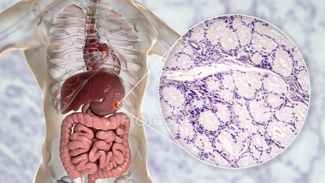 Adénocarcinome muqueux de l'estomac humain, illustration par ordinateur et micrographie photonique . — Photo de stock