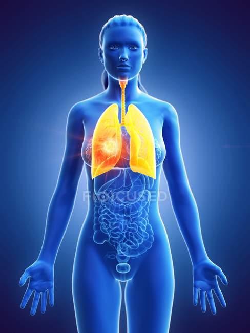 Tumeur pulmonaire dans le corps féminin sur fond bleu, illustration numérique . — Photo de stock