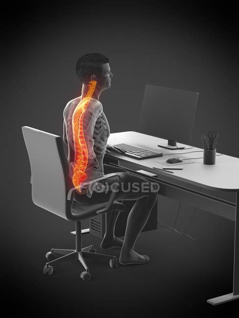 Office worker silhouette sitting at desk with back pain, conceptual illustration. — Stock Photo