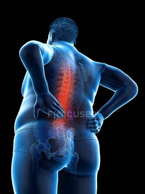 Ожиріння чоловіче тіло з болі в спині в режимі низького кута зору, цифрова ілюстрація. — стокове фото