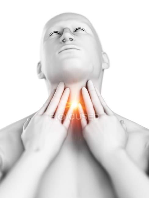 Cuerpo masculino abstracto con dolor de garganta sobre fondo blanco, ilustración digital conceptual . - foto de stock
