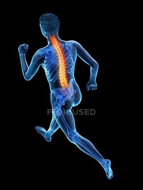 Silhouette dell'atleta di corsa con mal di schiena, illustrazione concettuale . — Foto stock