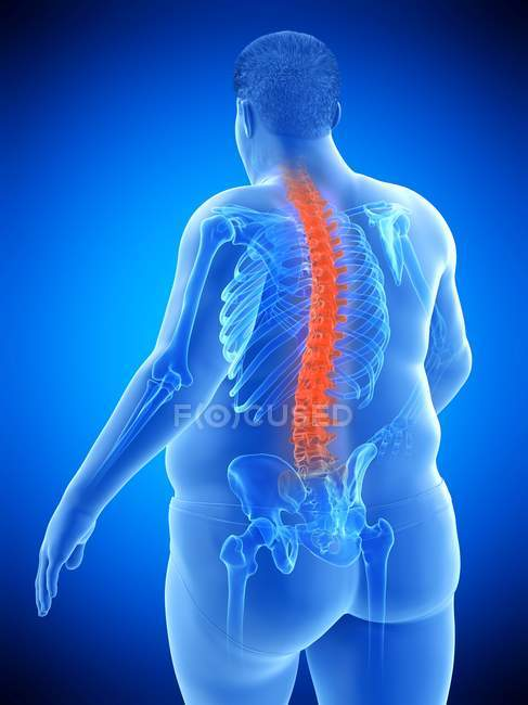 Obese male body with back pain, conceptual illustration. — Stock Photo