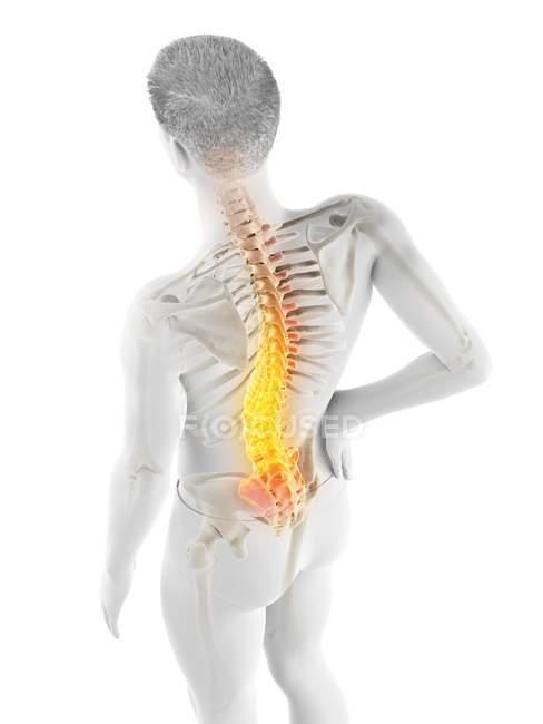 Männlicher Körper mit Rückenschmerzen im Hochwinkel, konzeptionelle Illustration. — Stockfoto