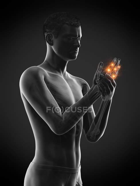 Homem abstrato com dor nos dedos, ilustração conceitual . — Fotografia de Stock