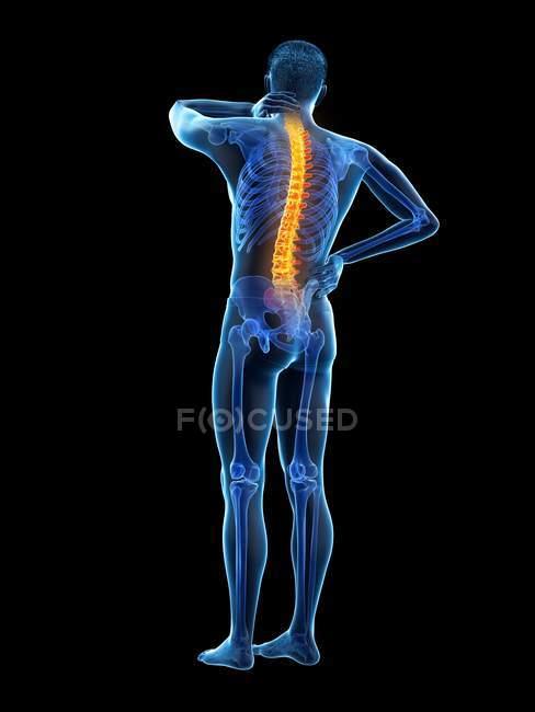 Задній вигляд чоловічого тіла з болем у спині, Концептуальна ілюстрація. — стокове фото