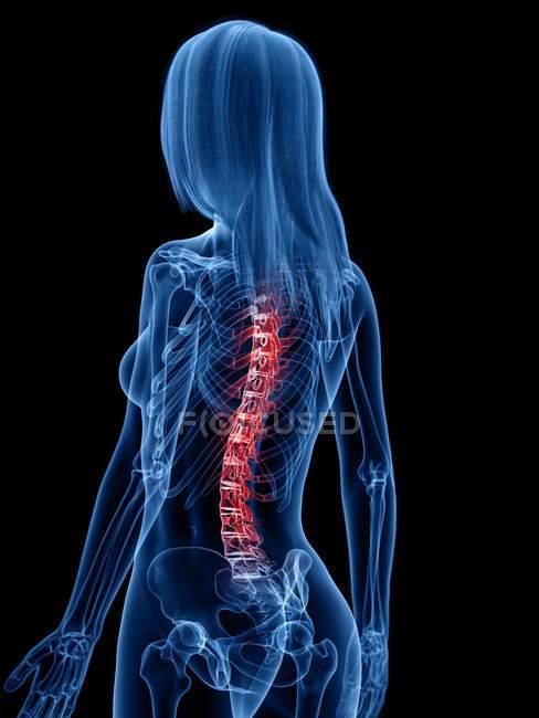 Silhueta feminina com dor nas costas na visão traseira, ilustração conceitual . — Fotografia de Stock