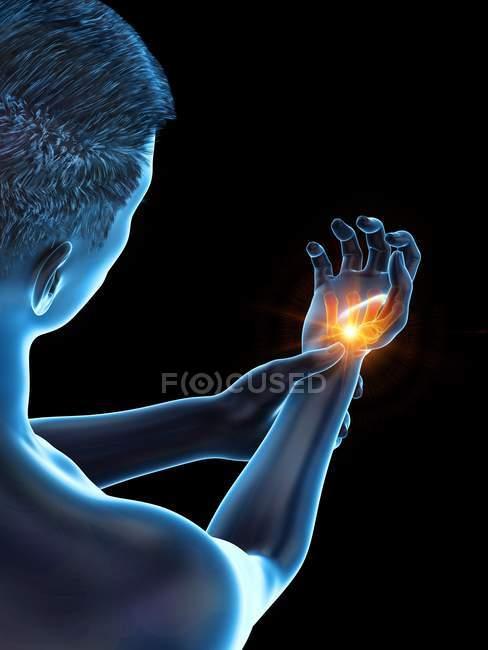 Corpo maschile con dolore da polso incandescente, illustrazione concettuale . — Foto stock